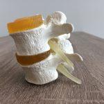 Fysiotherapie de Oversteek rugklachten pijn Nijmegen Oosterhout
