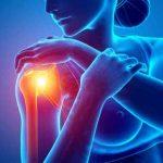 Fysiotherapie_de_Oversteek_schouderpijn