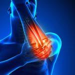Fysiotherapie_de_Oversteek_elleboog_pijn