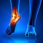 Fysiotherapie_de_Oversteek_enkelklachten