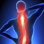 Fysiotherapie_de_Oversteek_rugpijn