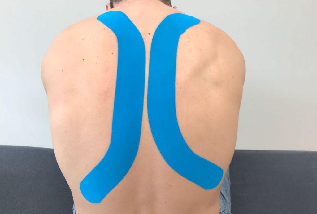 Fysiotherapie_de_Oversteek_Medical_Taping
