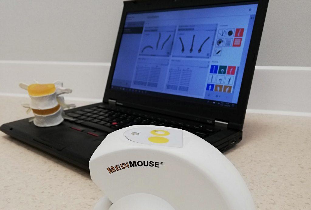 Fysiotherapie_de_Oversteek_Nijmegen_Noord_Spinal_Mouse_Medimouse_rugadvies